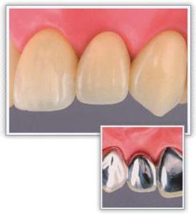 前歯の保険のブリッジ