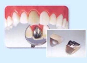 前歯の保険の被せ物