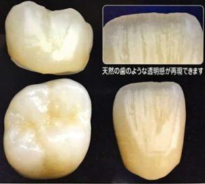 前歯のセラミックの被せ物