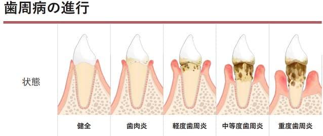 歯周病の進行度分類