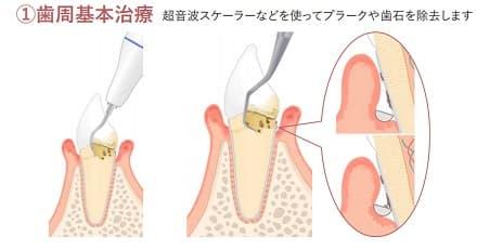 歯周基本治療