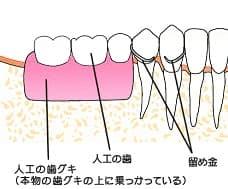 入れ歯による治療