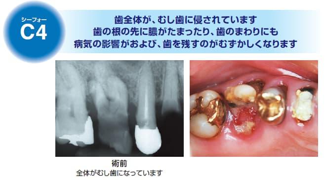 保存不可能な虫歯