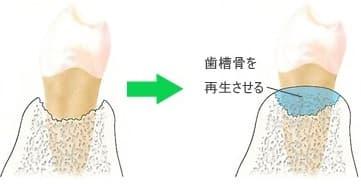 歯槽骨の再生
