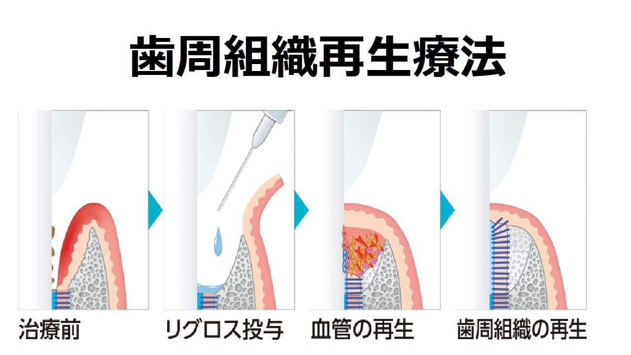 歯周組織再生療法