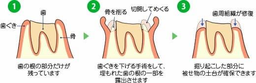 歯冠長延長術