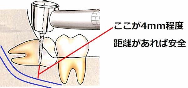 下顎管までの距離