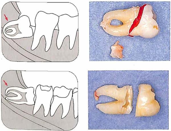 歯冠の分割1