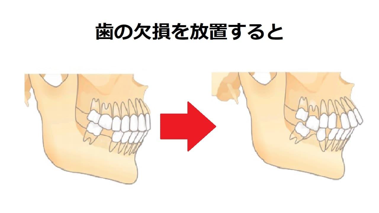 歯の欠損を放置すると