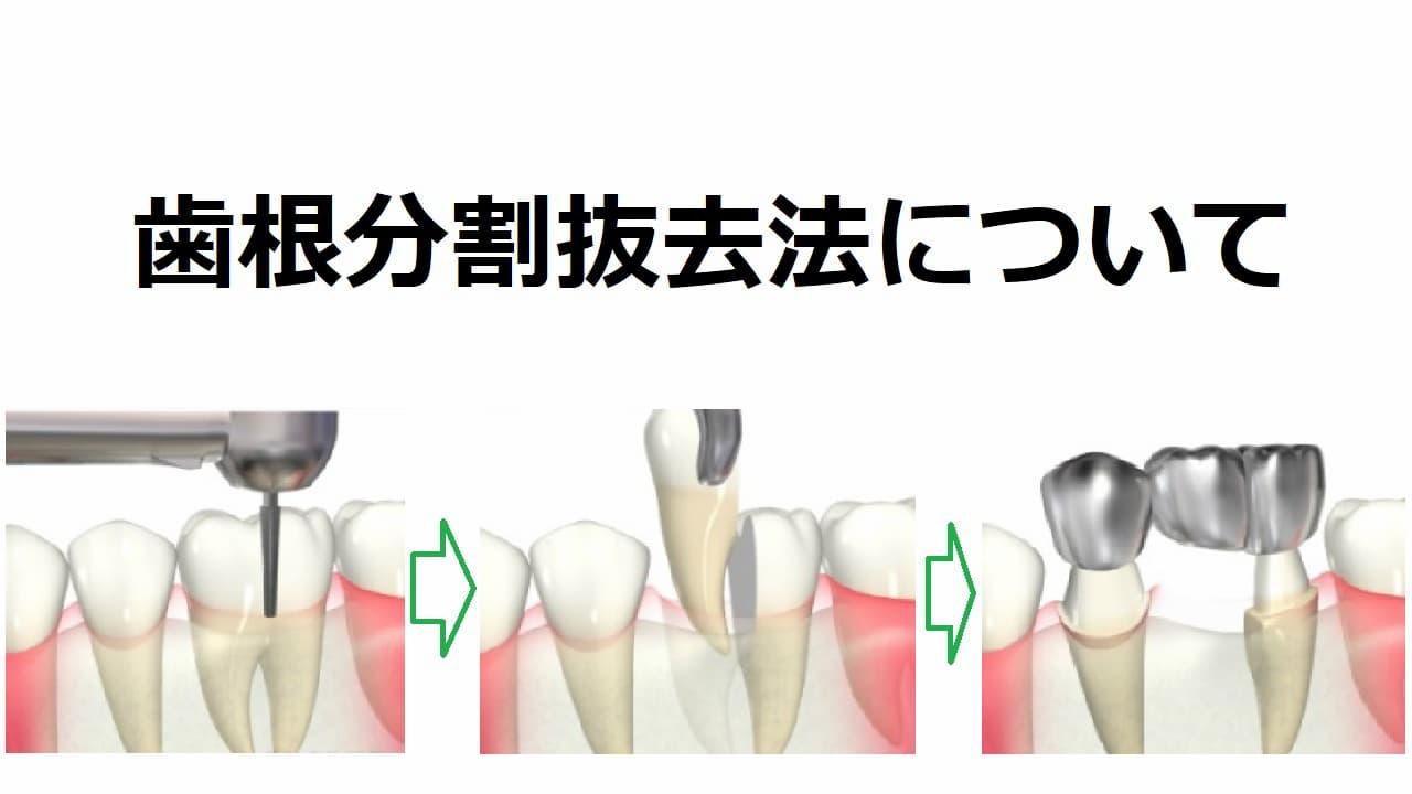 歯根分割抜去法について