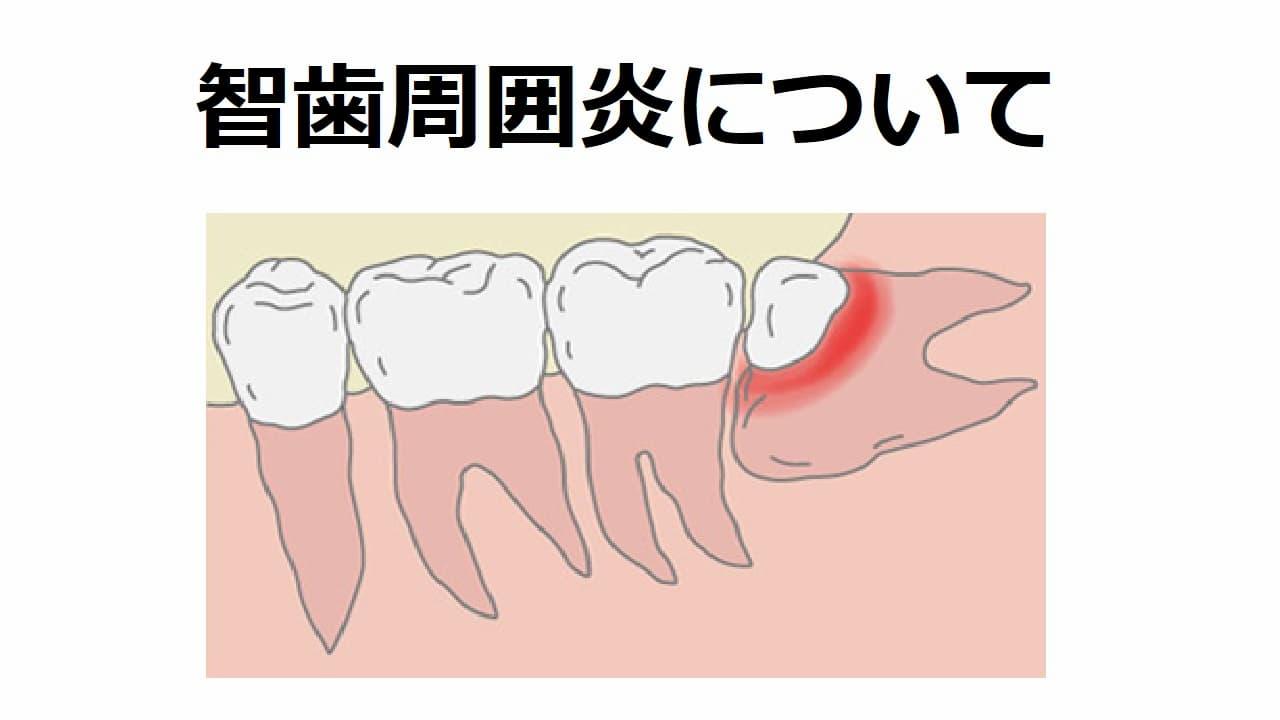 智歯周囲炎について