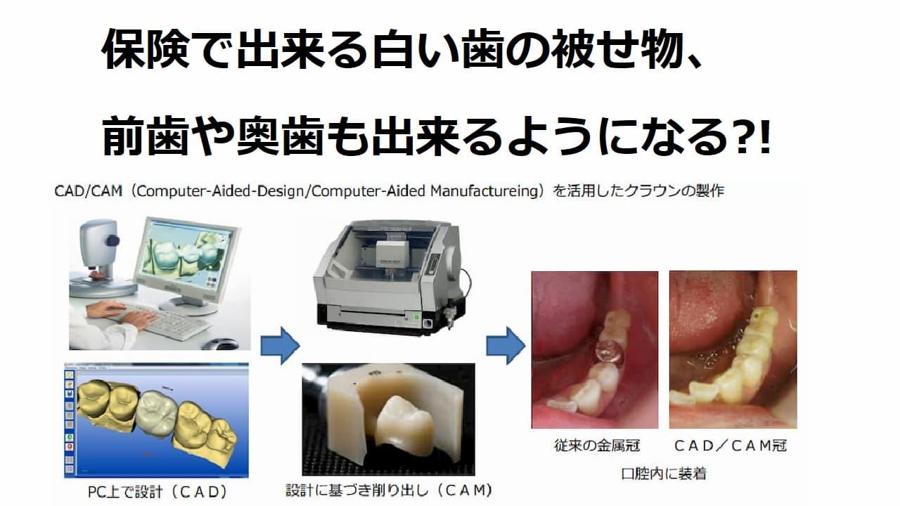 保険でできる白い歯の被せ物
