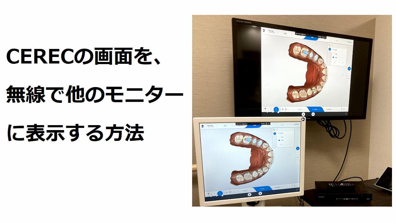 セレックの画面を、無線で他のモニターに表示する方法