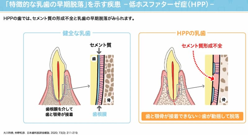 低ホスファターゼ症による歯の早期脱落のメカニズム