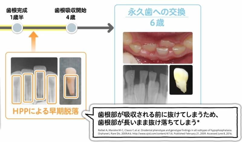 低ホスファターゼ症による歯の早期脱落
